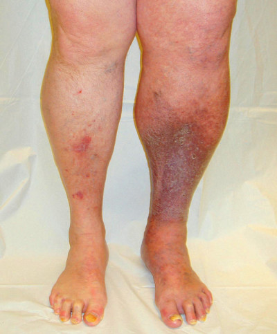 Medical Pictures Info – Blood Clots in Leg