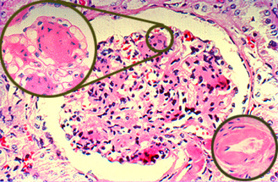 Pathology Case Studies