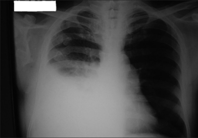 Chest X-ray on admission shows right pleural basedhomogenous shadow in ...