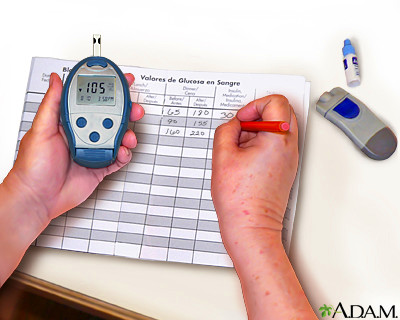 Monitoring blood glucose - Series - Penn State Hershey Medical Center