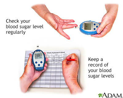 Multimedia Encyclopedia - Penn State Hershey Medical Center - Manage your blood sugar - Penn ...