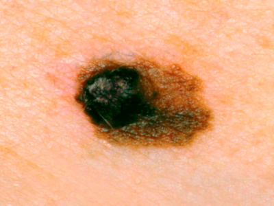 Skin Cancer Warning Signs - What Skin Cancer Looks Like