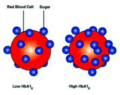 fructosamine to hgba1c | Diabetes Advice Guide