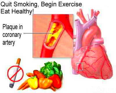 Diabetes, Heart Disease, And Stroke | Diabetes Go Away