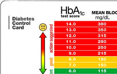 a1c scale chart | Diabetes Inc.