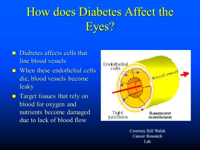 How Diabetes Steals Vision from Your Patients - ppt video ...