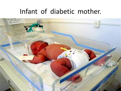 DIABETES IN PREGNANCY BY DR. SHUMAILA ZIA. - ppt video online download