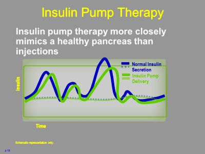 Type 1 Diabetes: Multiple Dose Injections and Pump Therapy - ppt download