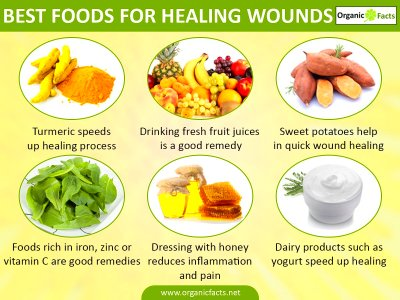 ON NUTRITION: Proper foods help with healing - Statyourself