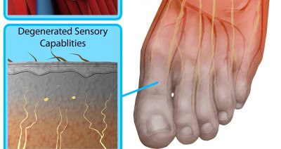 Diabetic neuropathy feet pictures   Symptoms and pictures