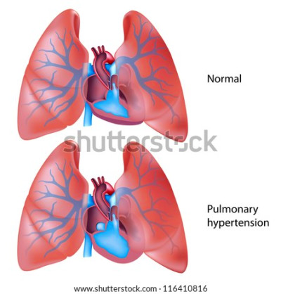 Cardiovascular System Stock Photos, Royalty-Free Images & Vectors ...