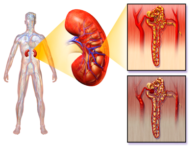 Diabetic Nephropathies; Glomerulosclerosis, Diabetic ...