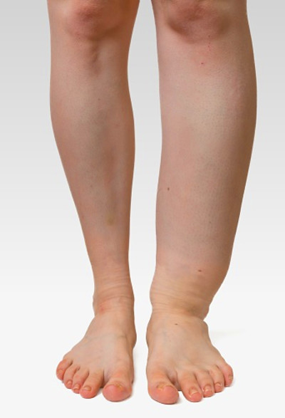 How To Treat Edema in Feet and Legs - Wound Care Society