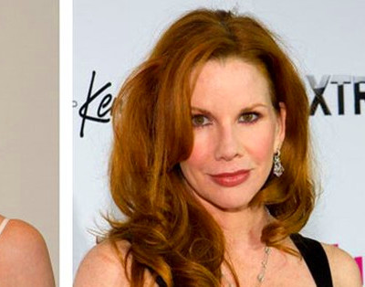 ... Before and After Plastic Surgery - Melissa Gilbert Before And After