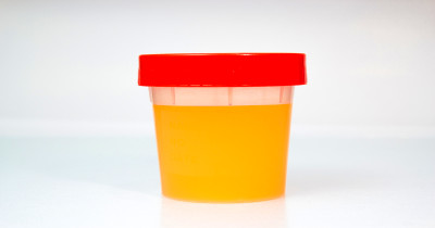 Proteinuria (High Protein in Urine): Causes, Complication ...