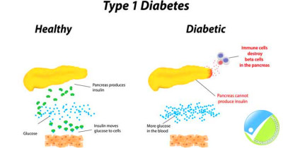Lifestyle and Home Remedies for Type 1 Diabetes