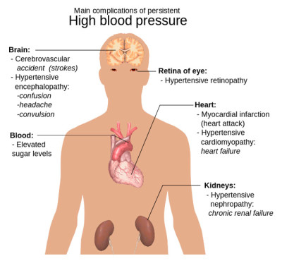 How Chiropractic Care Can Help to Treat Hypertension (High ...