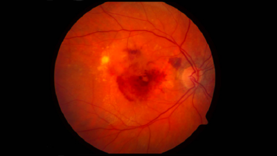 Macular Degeneration: Searching for a Treatment