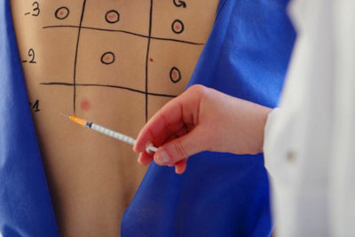 Blood and skin allergy tests help to diagnose food allergies