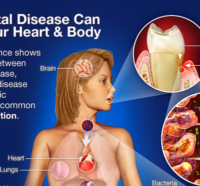 Cardiovascular Disease And Inflammation — Bad Connections