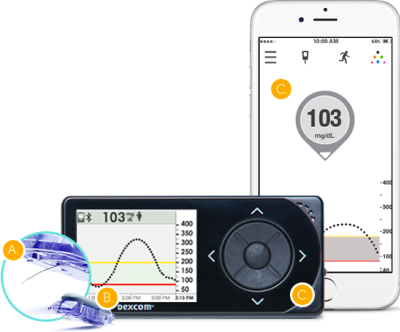 Continuous Glucose Monitoring   What is CGM?
