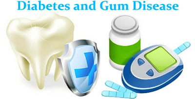 Diabetes and Gum Disease: Does Diabetes Affect Your Teeth ...