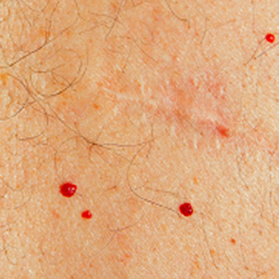 Red Dots On Skin | Dorothee Padraig South West Skin Health Care