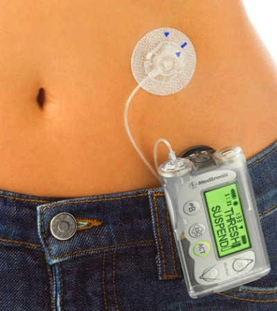 Insulin Pump Pros And Cons, You Should Be Aware Of