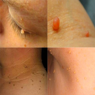 Skin Tag Removal Ottawa - Essence of Beauty Skin Care