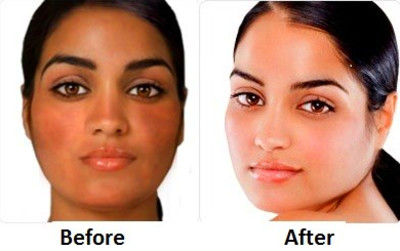 Best Skin Whitening Pills – Before and After, Reviews, Permanent ...