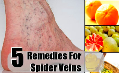 Best 5 Home Remedies For Spider Veins - Natural Treatments ...