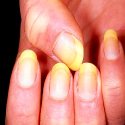Effective Natural Cures For Yellow Nails - How To Cure ...