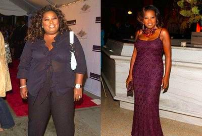 Star Jones before and after gastric bypass surgery | Healthy Women ...