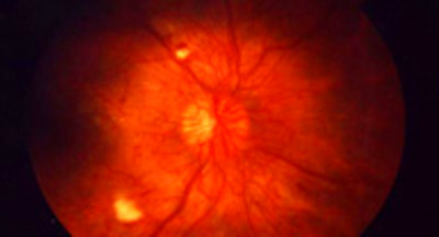 Diabetic Retinopathy: Definition and Patient Education