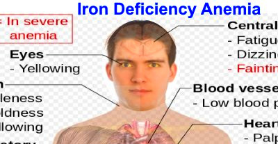 Signs of Iron Deficiency and How To Increase Iron levels In Your Blood