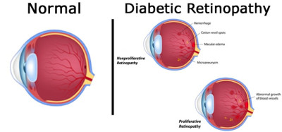 Tiredness after eating diabetes, eye diseases caused by ...