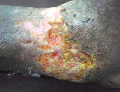 Chronic venous leg ulcer with multidrug resistant bacterial infection ...