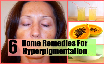 6 Home Remedies For Hyperpigmentation - Natural Treatments & Cure For Hyperpigmentation | Lady ...