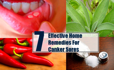 7 Effective Home Remedies For Canker Sores - Treatments ...