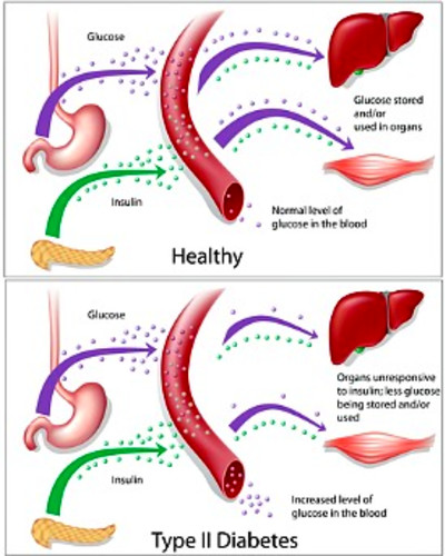 Type 2 Diabetes - How to reverse it and have permanent fat loss.