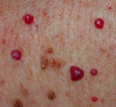 Blood Spots on Skin, Red, Tiny, Raised, Itchy, Bumps, Pictures, Causes ...