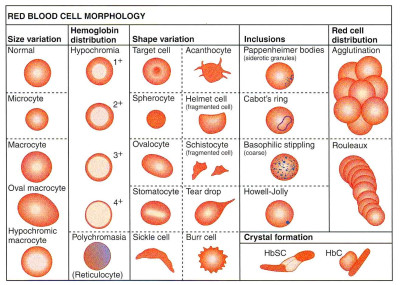 Summary of Abnormal Red Blood Cell Morphologies and ...