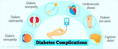 Diabetes Essentials: Types, Complications, Management & Treatment