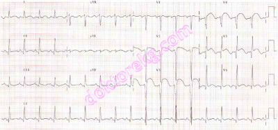 ECG 1. The ECG above belongs to a 69 years old woman. ST segment ...