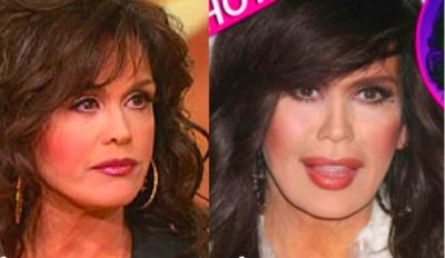 Marie Osmond Plastic Surgery: Reinventing a Glamorous Look