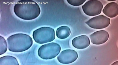 Above: Red blood cells. Top left, very healthy and strong. Others ...
