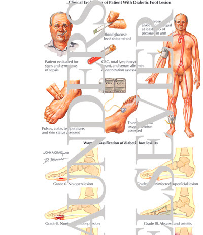 Nerve Pain: Diabetic Hand Nerve Pain