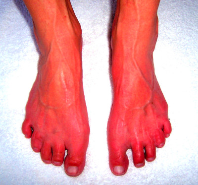 Effects and Causes of Diabetic Neuropathy - Natural ...