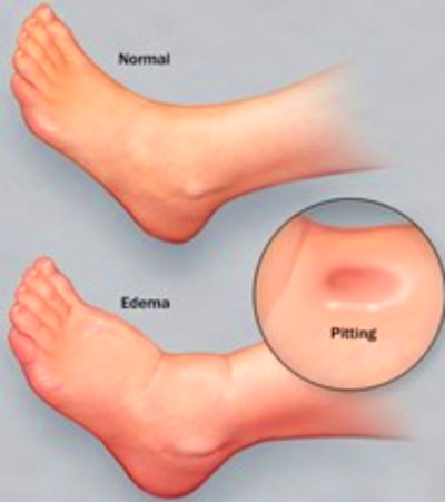 Swollen Feet After Delivery: Causes and Remedies | New Health Advisor
