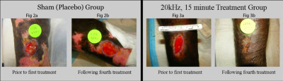 Look at the wound pictures.Absolutely Disgusting aren't they?